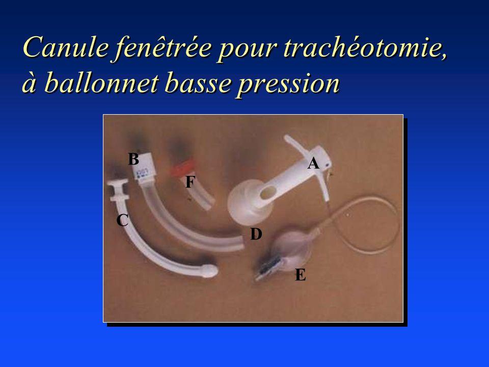 Canule fenêtrée pour trachéotomie, à ballonnet basse pression B C F E A D