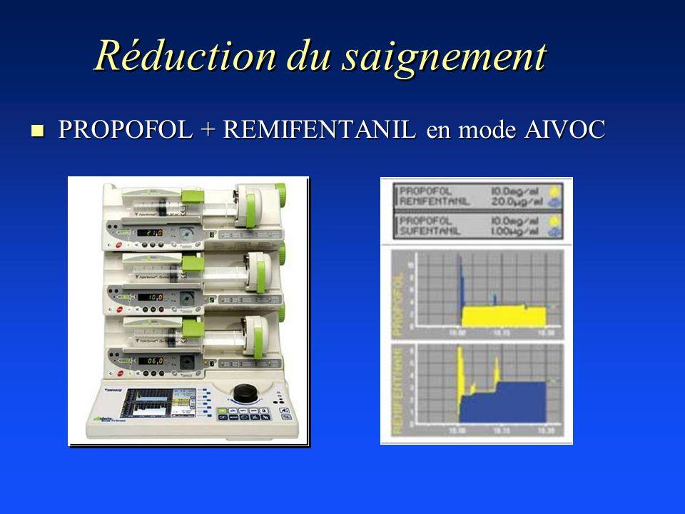 Réduction du saignement n PROPOFOL + REMIFENTANIL en mode AIVOC