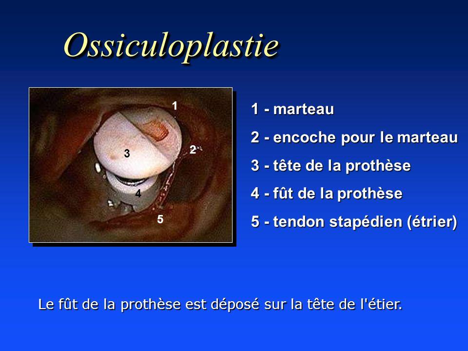OssiculoplastieOssiculoplastie 1 - marteau 2 - encoche pour le marteau 3 - tête de la prothèse 4 - fût de la prothèse 5 - tendon stapédien (étrier) 1