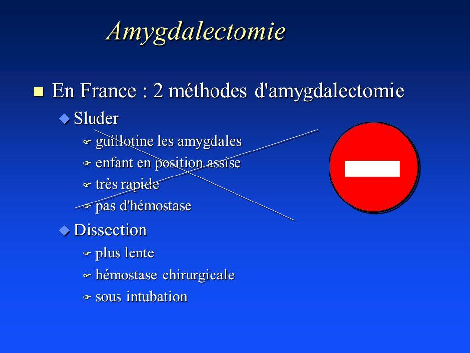 n En France : 2 méthodes d'amygdalectomie u Sluder F guillotine les amygdales F enfant en position assise F très rapide F pas d'hémostase u Dissection