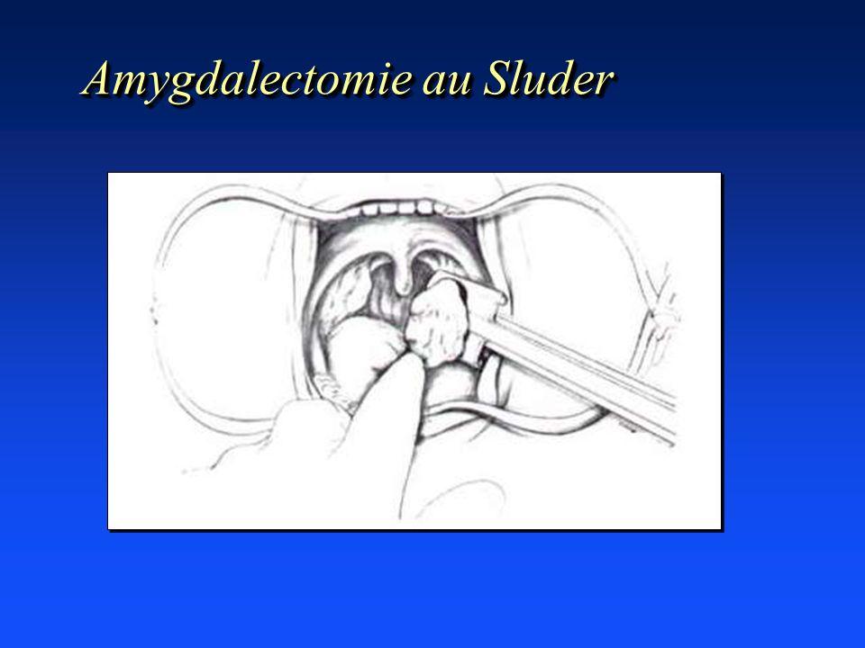 Amygdalectomie au Sluder