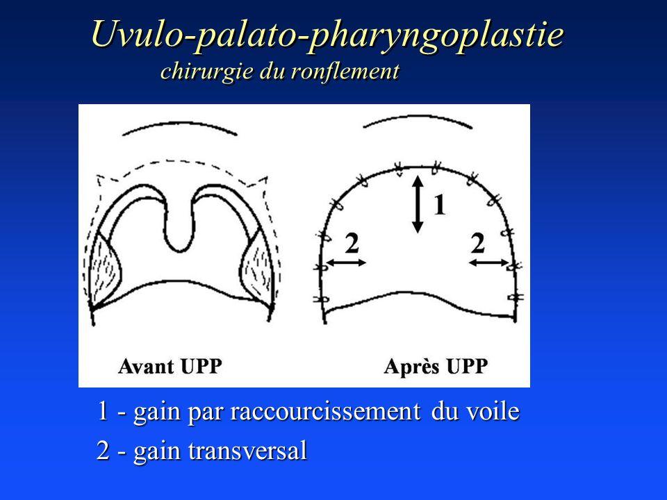 Uvulo-palato-pharyngoplastie chirurgie du ronflement 1 - gain par raccourcissement du voile 2 - gain transversal