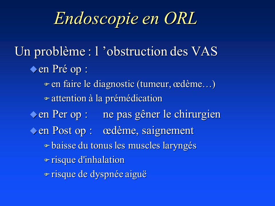 Endoscopie en ORL Un problème : l obstruction des VAS u en Pré op : F en faire le diagnostic (tumeur, œdème…) F attention à la prémédication u en Per
