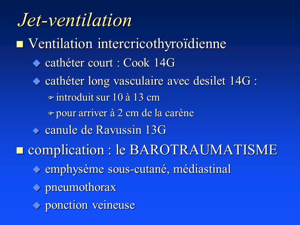 Jet-ventilation n Ventilation intercricothyroïdienne u cathéter court : Cook 14G u cathéter long vasculaire avec desilet 14G : F introduit sur 10 à 13
