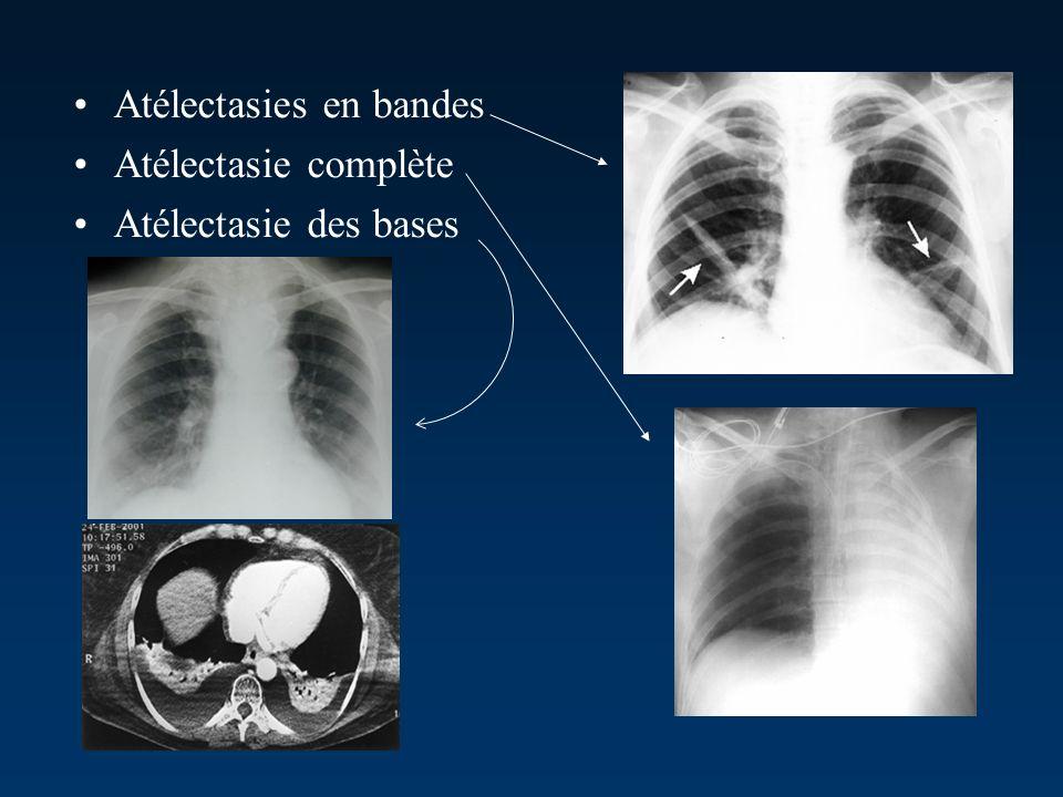Atélectasies en bandes Atélectasie complète Atélectasie des bases