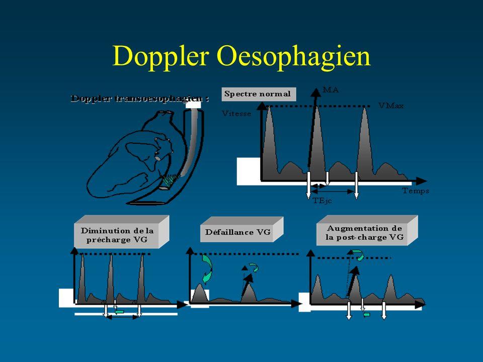 Doppler Oesophagien