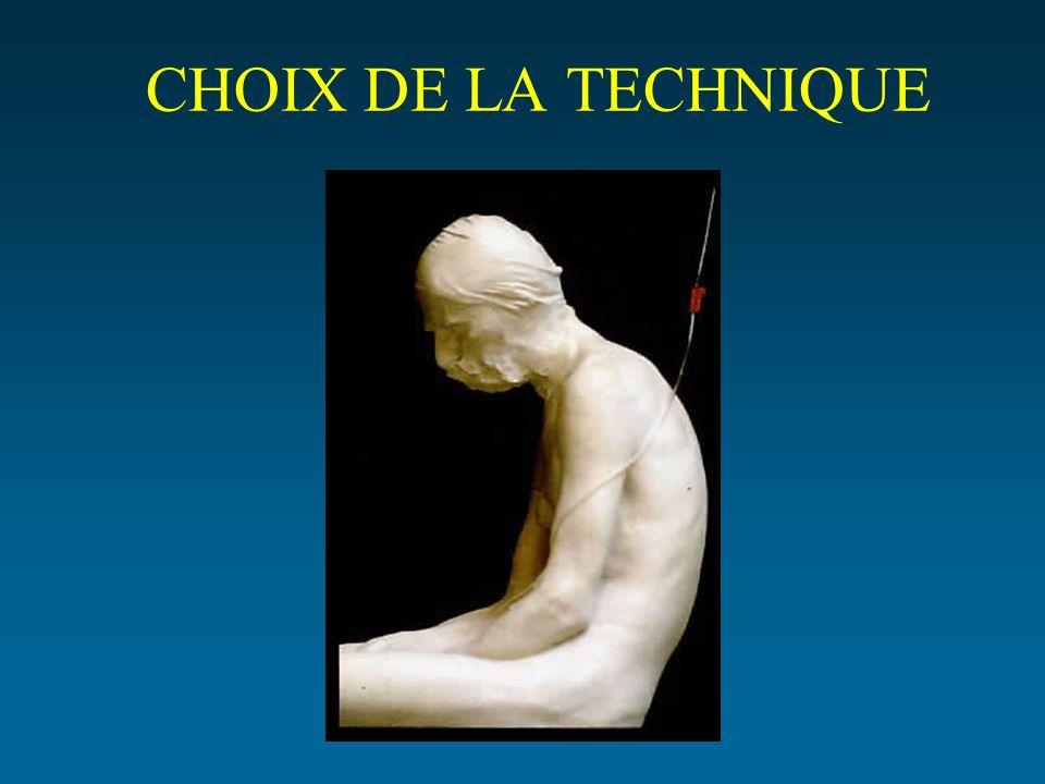 CHOIX DE LA TECHNIQUE