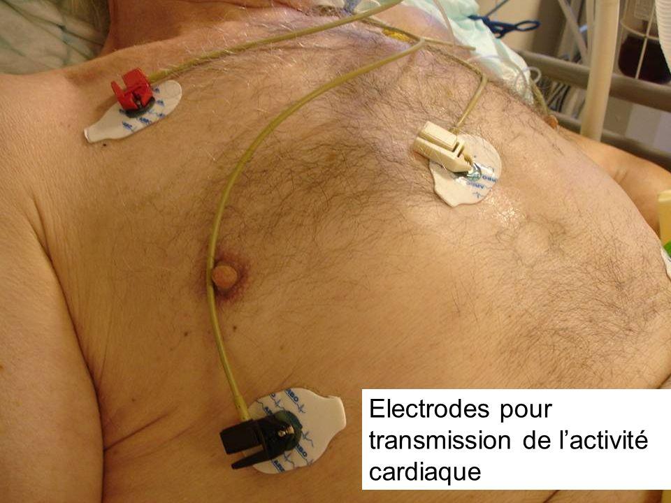 Electrodes pour transmission de lactivité cardiaque