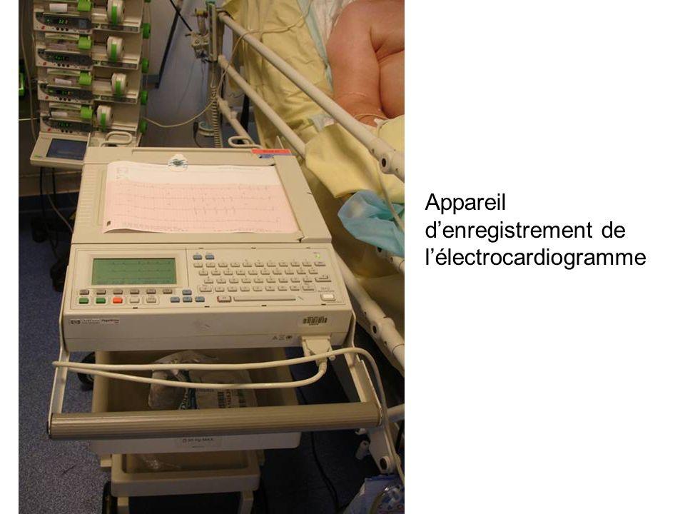 Appareil denregistrement de lélectrocardiogramme