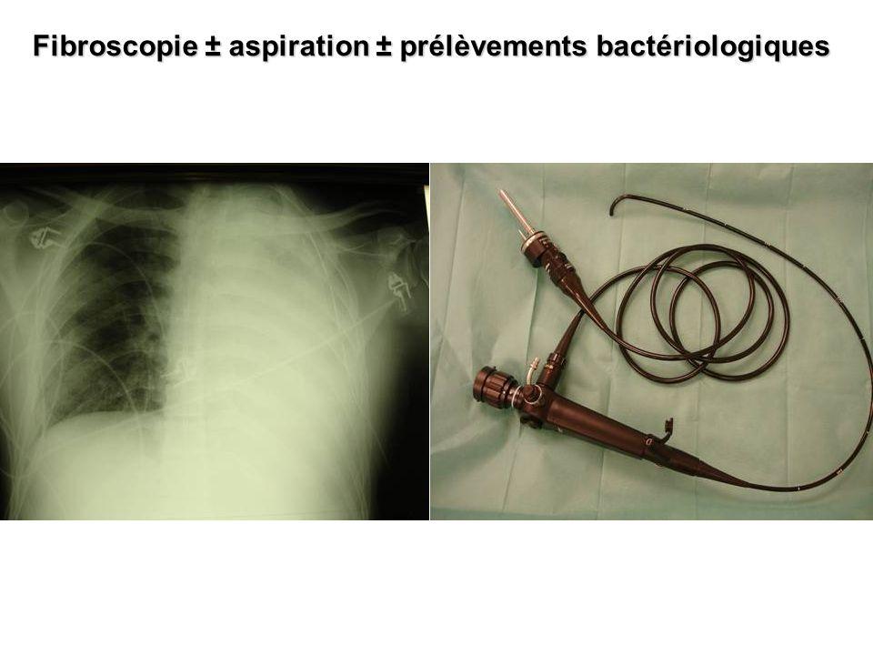 Fibroscopie ± aspiration ± prélèvements bactériologiques