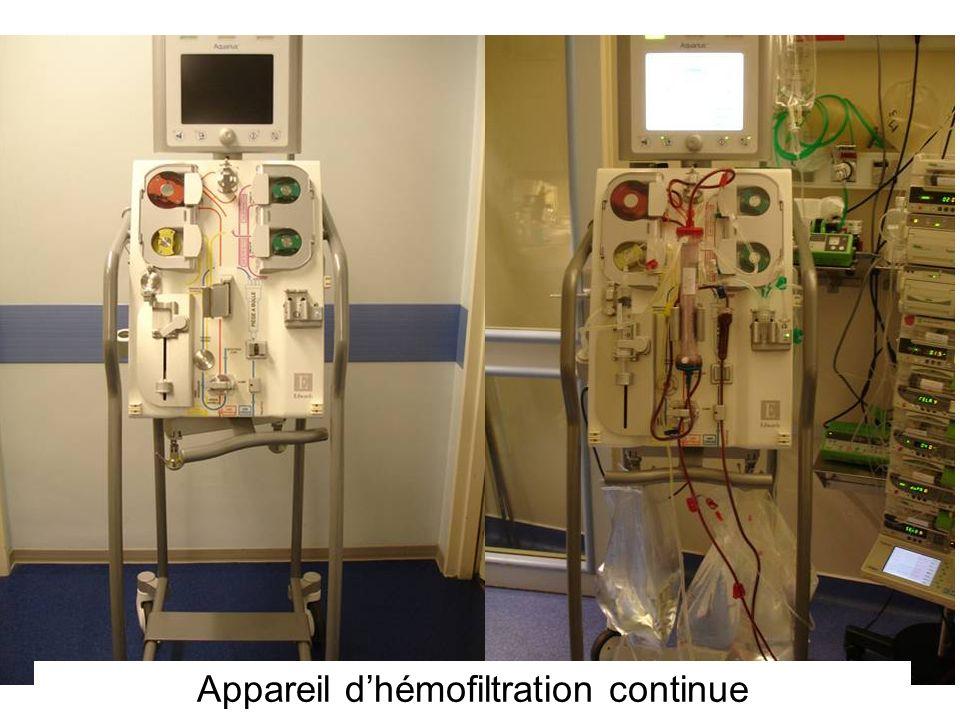 Appareil dhémofiltration continue