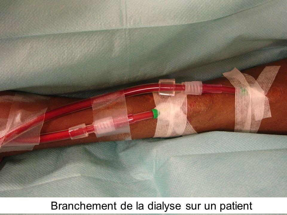 Branchement de la dialyse sur un patient