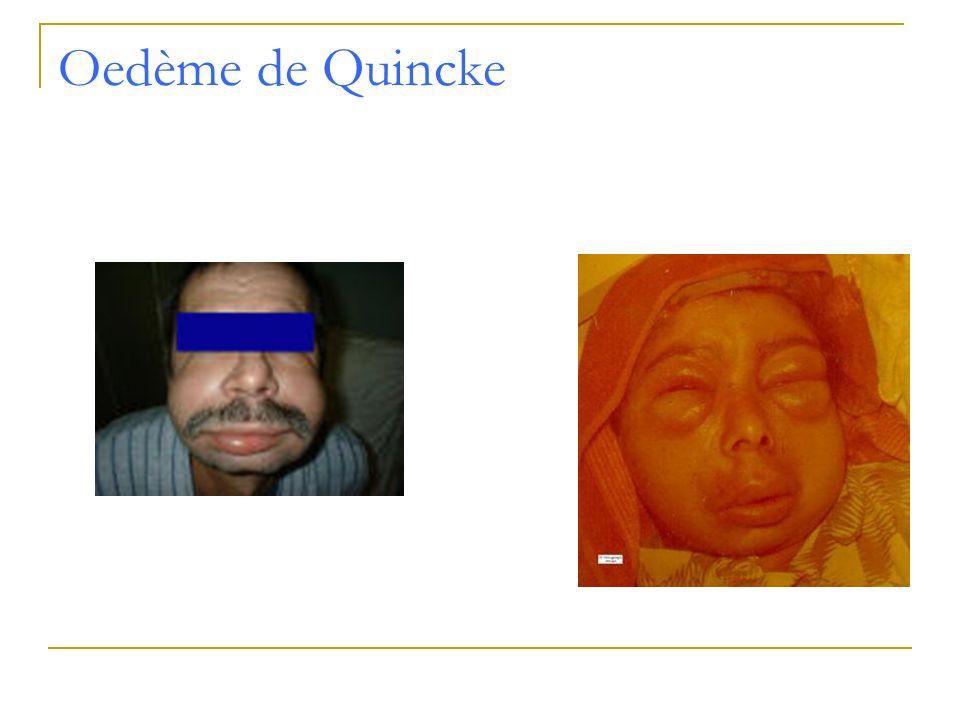Oedème de Quincke