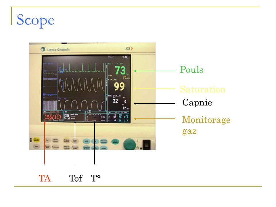 Scope Saturation Pouls Capnie TAT°Tof Monitorage gaz