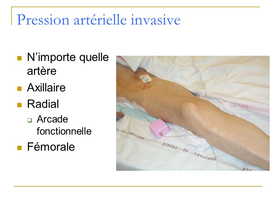 Pression artérielle invasive Nimporte quelle artère Axillaire Radial Arcade fonctionnelle Fémorale
