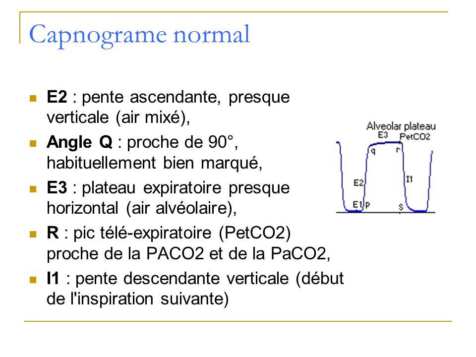 Capnograme normal E2 : pente ascendante, presque verticale (air mixé), Angle Q : proche de 90°, habituellement bien marqué, E3 : plateau expiratoire p