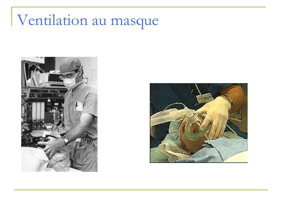 Ventilation au masque