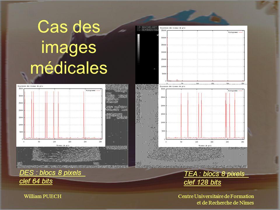 Centre Universitaire de Formation et de Recherche de Nîmes William PUECH Cas des images médicales DES : blocs 8 pixels clef 64 bits TEA : blocs 8 pixe