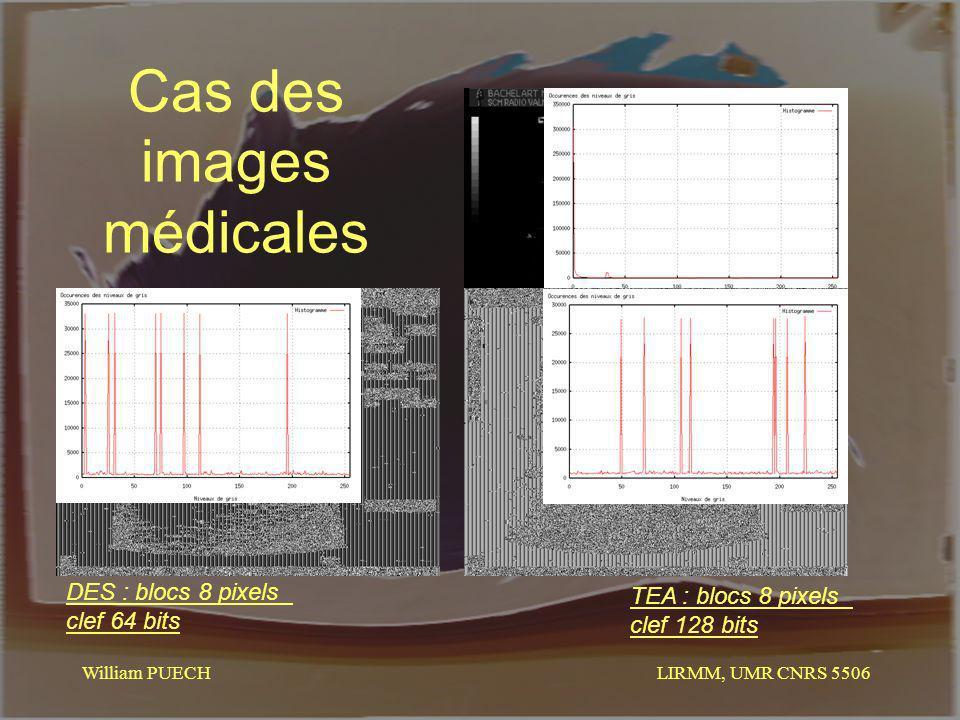 LIRMM, UMR CNRS 5506 William PUECH Cas des images médicales DES : blocs 8 pixels clef 64 bits TEA : blocs 8 pixels clef 128 bits