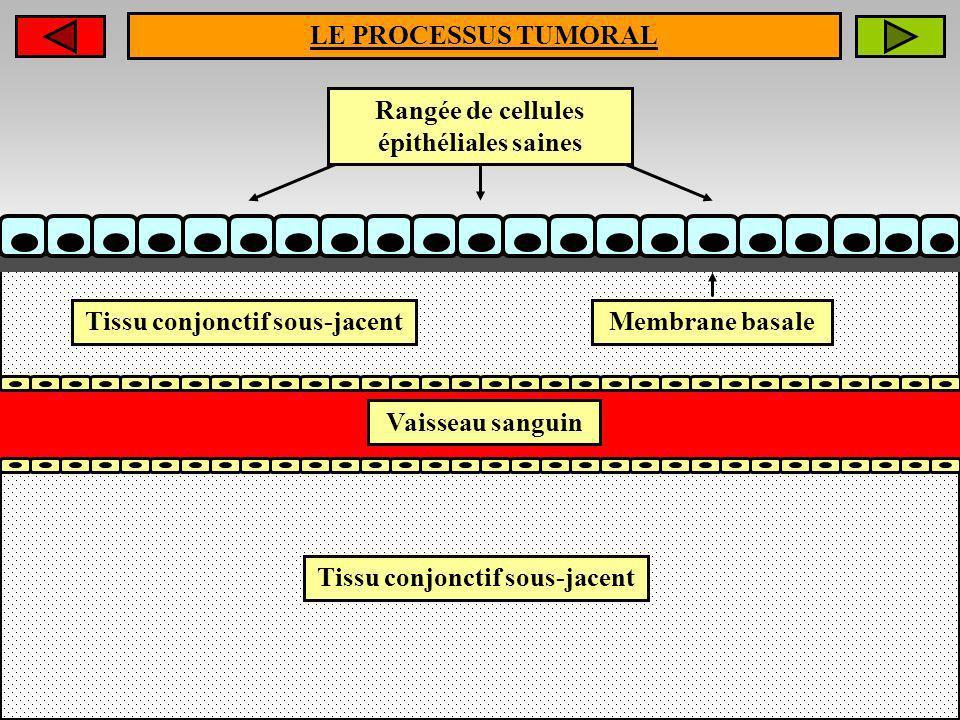 LE PROCESSUS TUMORAL Rangée de cellules épithéliales saines Tissu conjonctif sous-jacent Vaisseau sanguin Membrane basale Tissu conjonctif sous-jacent