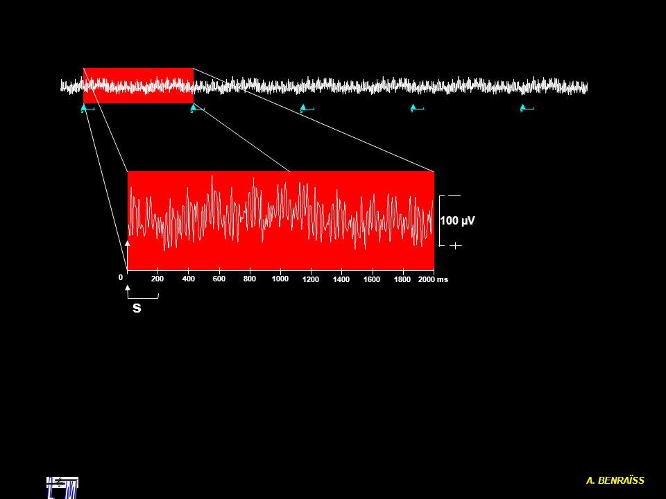 A. BENRAÏSS ss s s s 0 2000 ms 1000 200400 600 800 1200 140016001800 s 100 µV