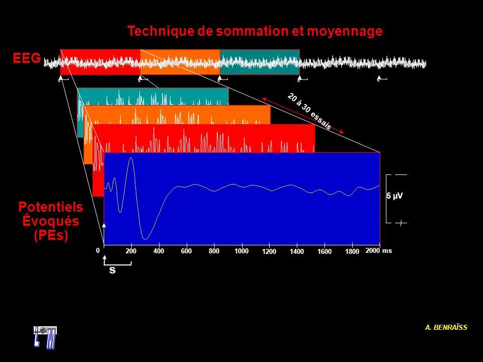 A. BENRAÏSS s s ss s 02000 ms 1000200400600800 1200 140016001800 s 5 µV 20 à 30 essais EEG Technique de sommation et moyennage Potentiels Évoqués (PEs