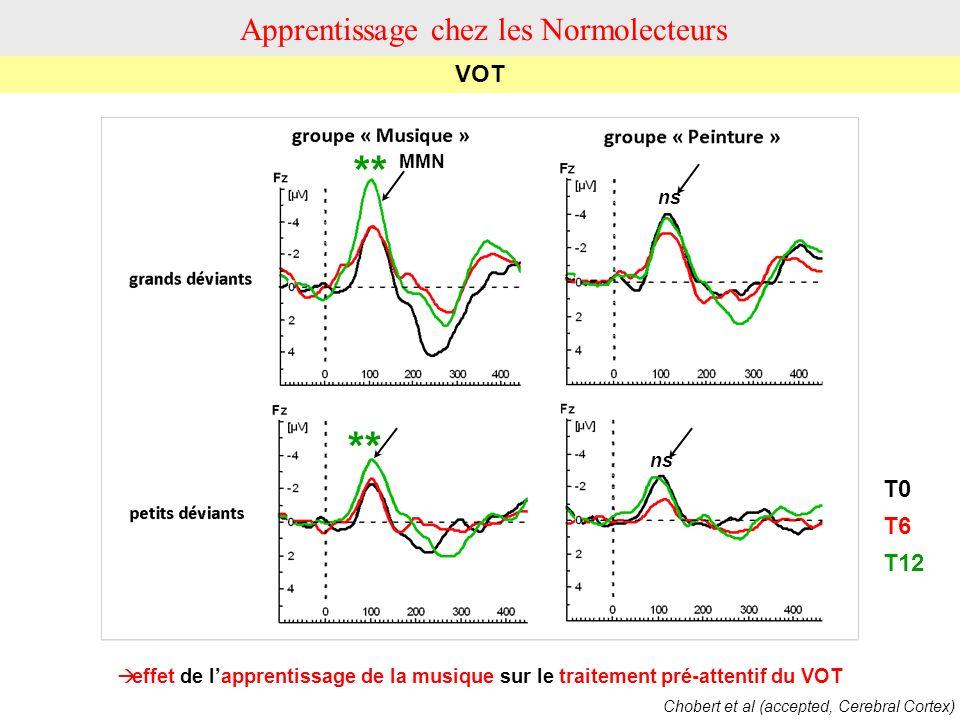 effet de lapprentissage de la musique sur le traitement pré-attentif du VOT T0 T6 T12 MMN ** ns VOT Apprentissage chez les Normolecteurs Chobert et al