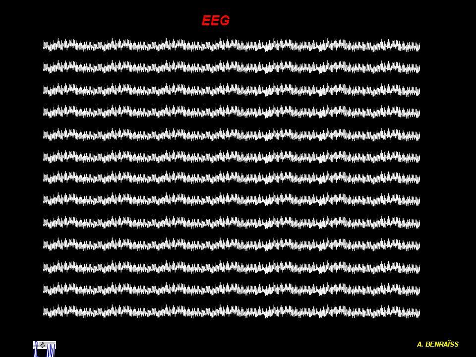 A. BENRAÏSS EEG