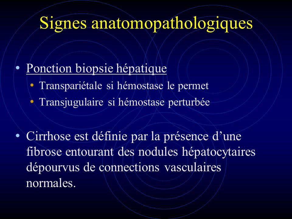 Signes anatomopathologiques Ponction biopsie hépatique Transpariétale si hémostase le permet Transjugulaire si hémostase perturbée Cirrhose est défini