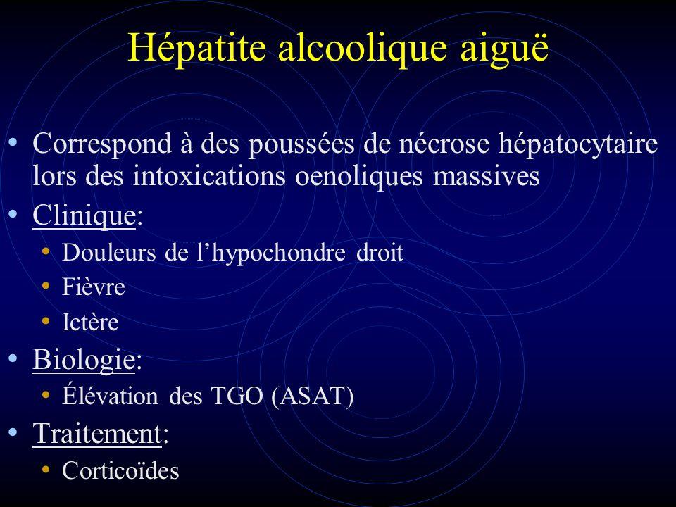 Hépatite alcoolique aiguë Correspond à des poussées de nécrose hépatocytaire lors des intoxications oenoliques massives Clinique: Douleurs de lhypocho