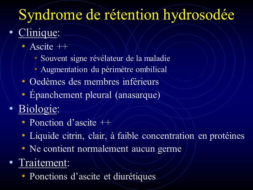 Syndrome de rétention hydrosodée Clinique: Ascite ++ Souvent signe révélateur de la maladie Augmentation du périmètre ombilical Oedèmes des membres in