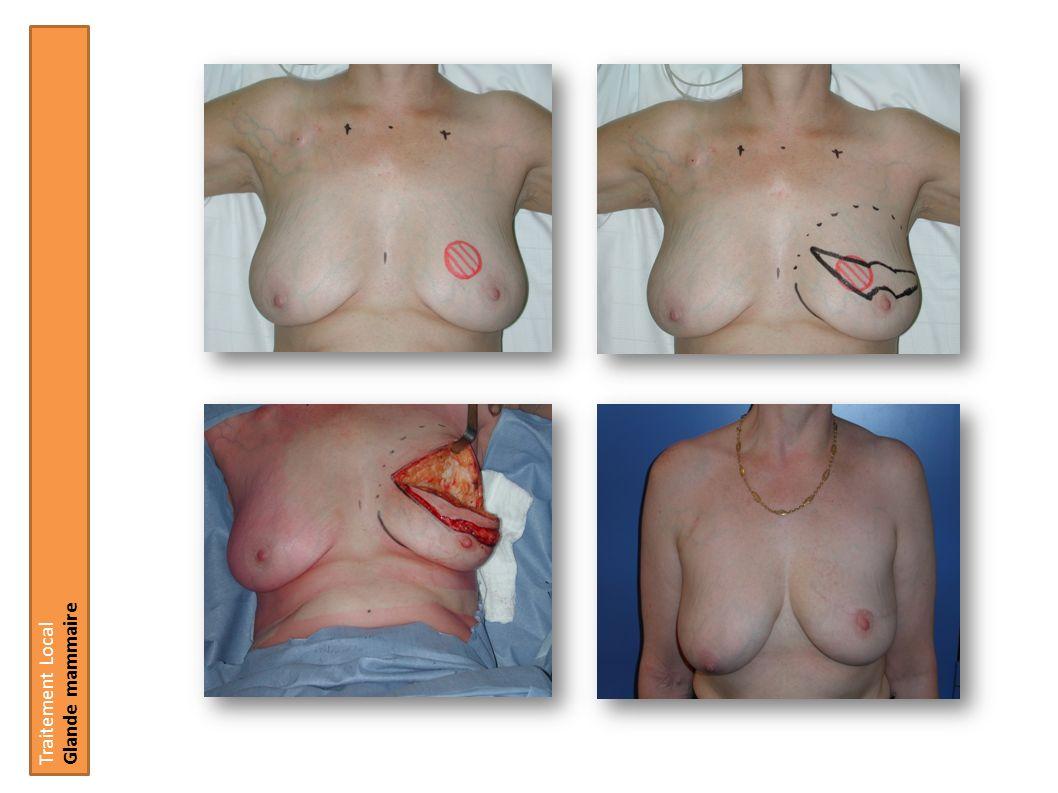 Traitement Local Glande mammaire