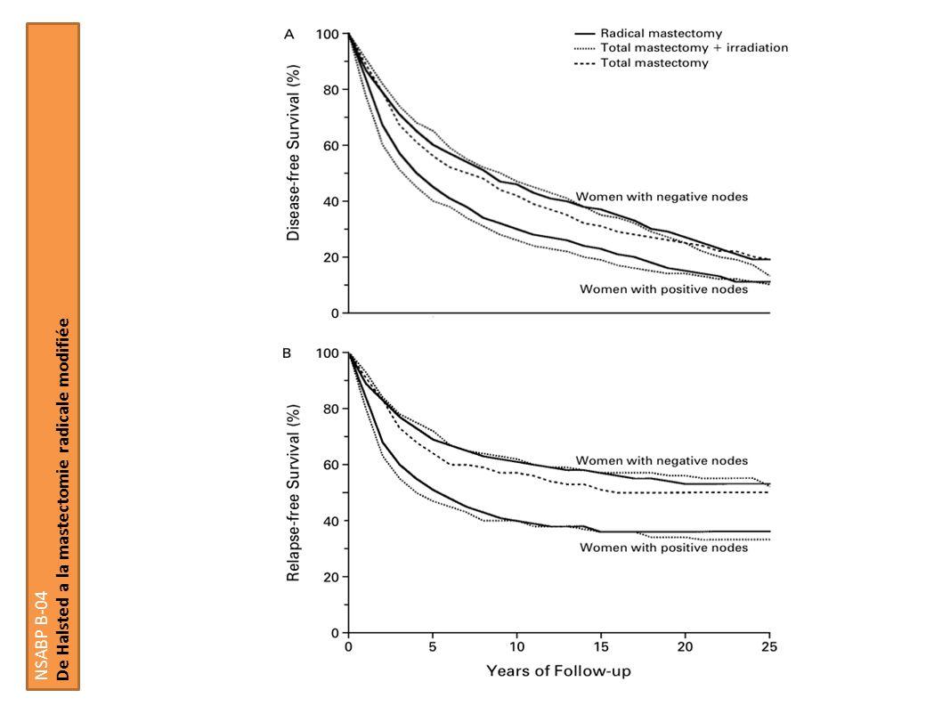 Chimiothérapie péri-opératoire Impact du controle local sur la survie globale Elkhuizen et al EORTC 10854 361 femmes Pas datteinte axillaire Chirurgie suivi dans les 36 heures dun cycle de chimiothérapie (5FU Doxorubicin Cyclophosphamid) Chirurgie Radiothérapie