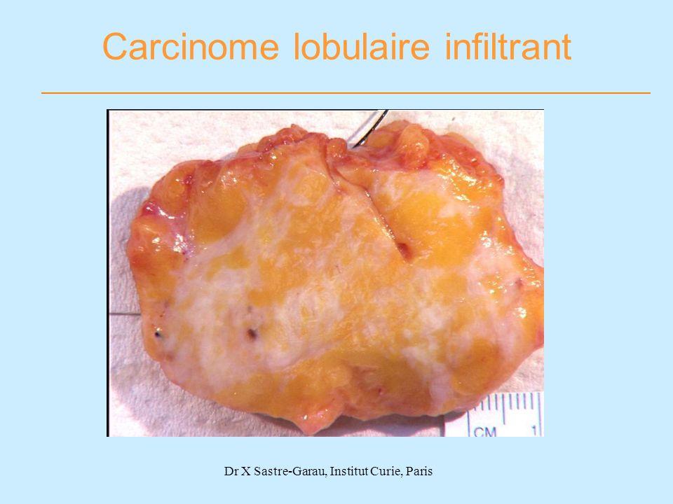 Carcinome lobulaire infiltrant Dr X Sastre-Garau, Institut Curie, Paris