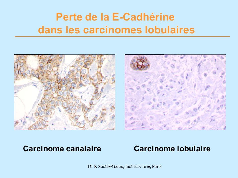 Carcinome lobulaireCarcinome canalaire Perte de la E-Cadhérine dans les carcinomes lobulaires Dr X Sastre-Garau, Institut Curie, Paris