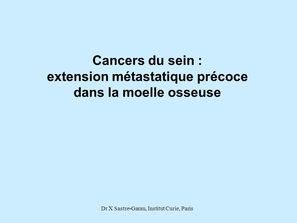Dr X Sastre-Garau, Institut Curie, Paris Cancers du sein : extension métastatique précoce dans la moelle osseuse
