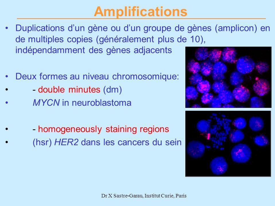 Dr X Sastre-Garau, Institut Curie, Paris Duplications dun gène ou dun groupe de gènes (amplicon) en de multiples copies (généralement plus de 10), ind