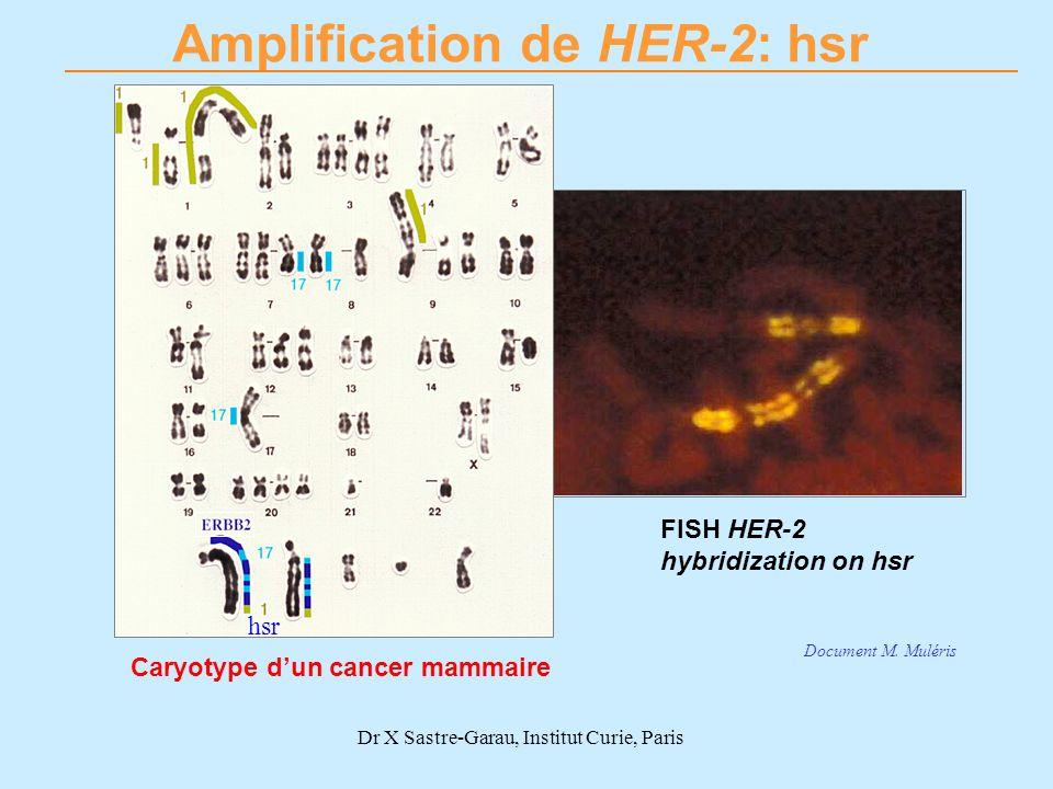 Dr X Sastre-Garau, Institut Curie, Paris Amplification de HER-2: hsr Caryotype dun cancer mammaire FISH HER-2 hybridization on hsr hsr Document M. Mul