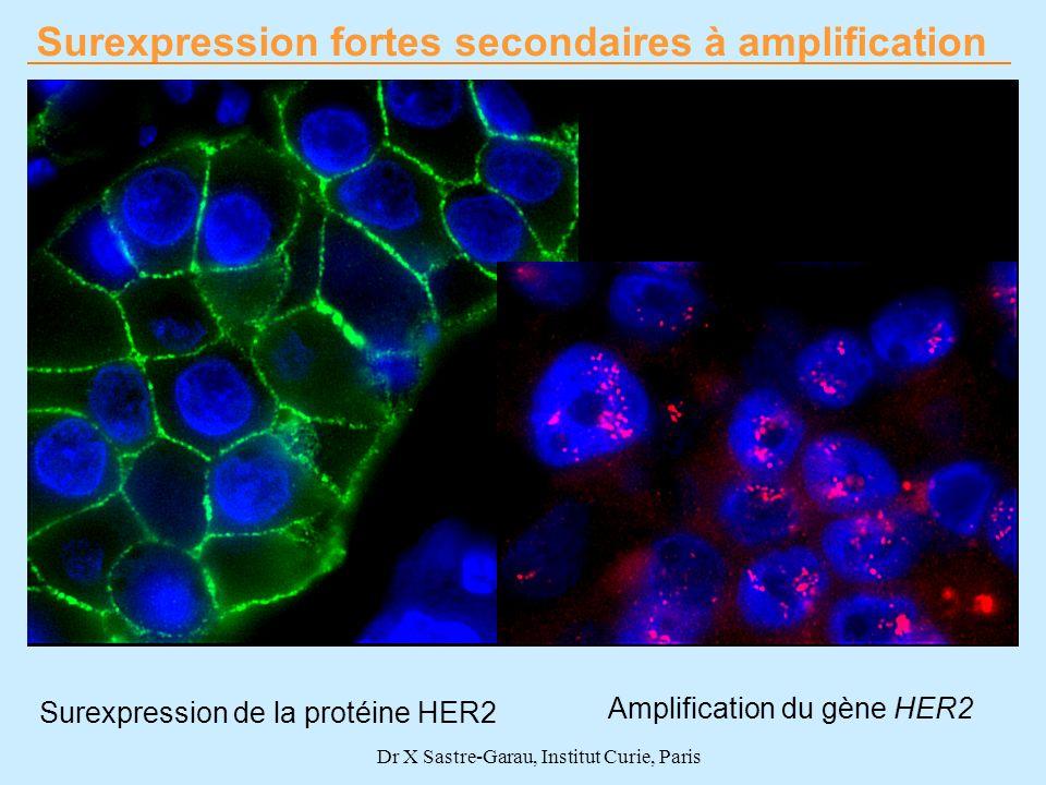 Surexpression fortes secondaires à amplification Surexpression de la protéine HER2 Amplification du gène HER2 Dr X Sastre-Garau, Institut Curie, Paris