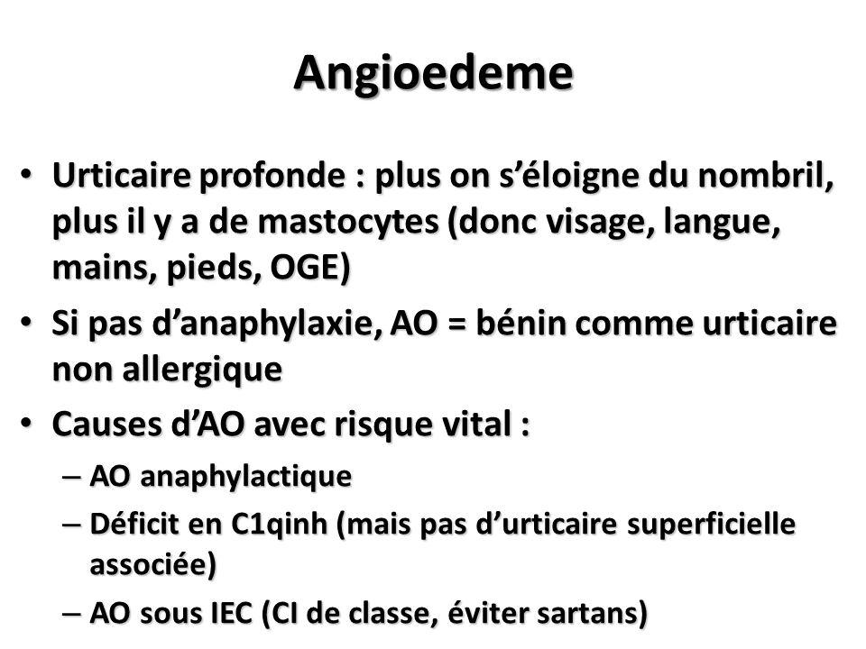 Angioedeme Urticaire profonde : plus on séloigne du nombril, plus il y a de mastocytes (donc visage, langue, mains, pieds, OGE) Urticaire profonde : p