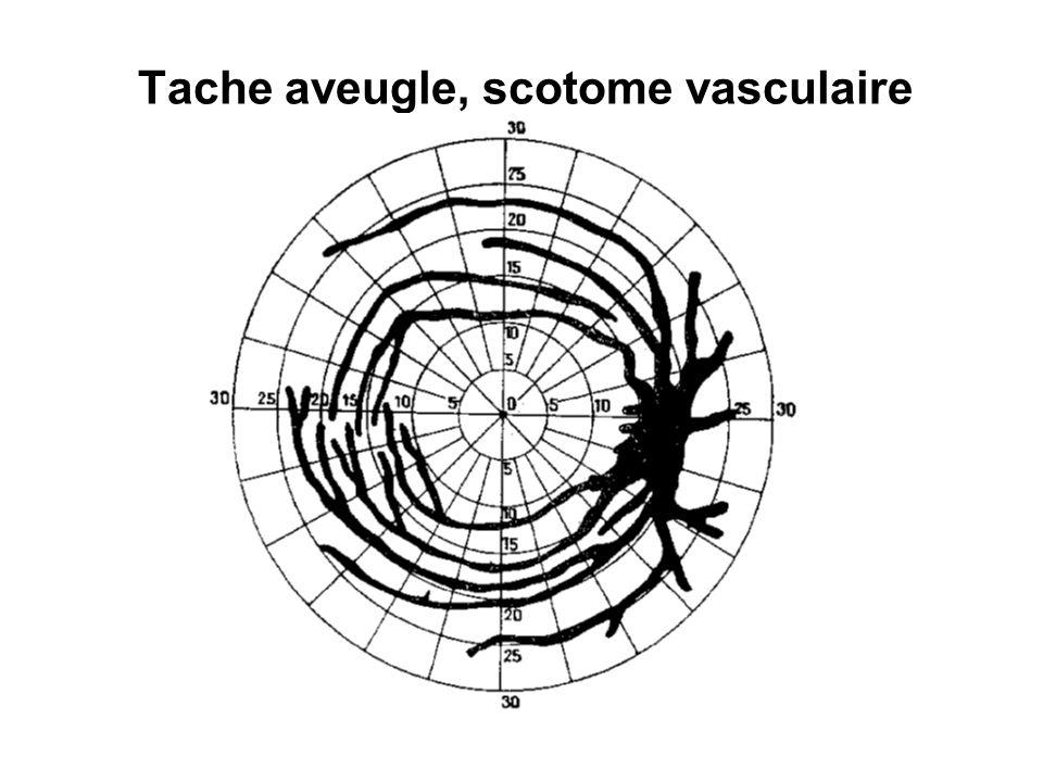 Tache aveugle, scotome vasculaire