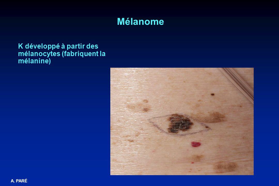A. PARÉ Mélanome K développé à partir des mélanocytes (fabriquent la mélanine)