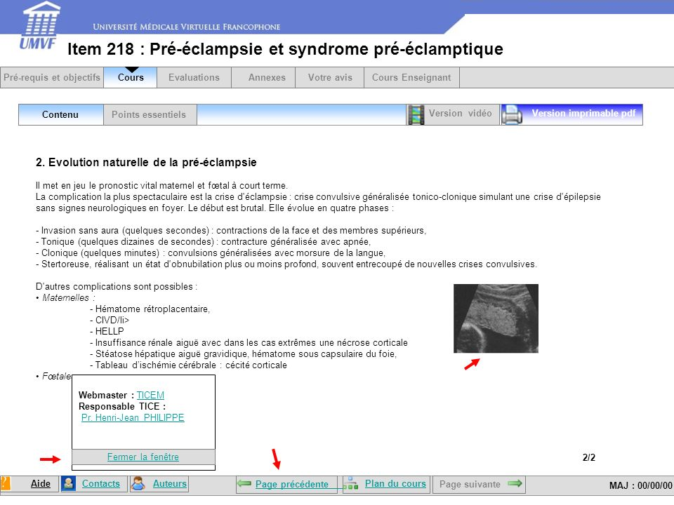 Item 218 : Pré-éclampsie et syndrome pré-éclamptique Points essentielsContenu Version imprimable pdf 2.