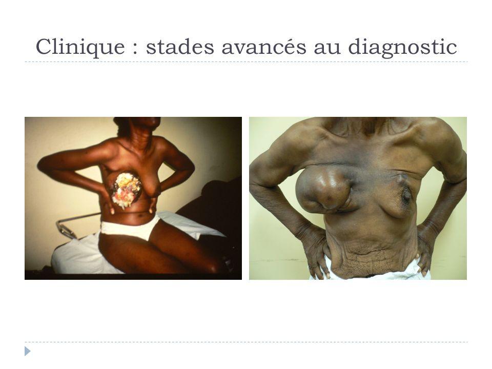 Clinique : stades avancés au diagnostic