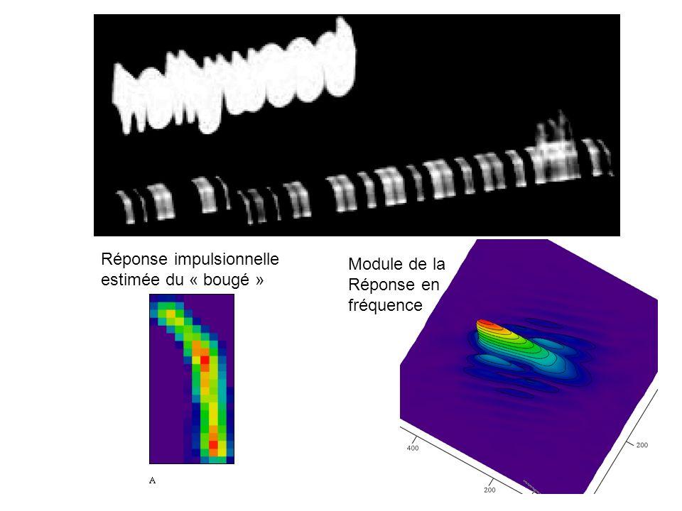 6 Réponse impulsionnelle estimée du « bougé » Module de la Réponse en fréquence