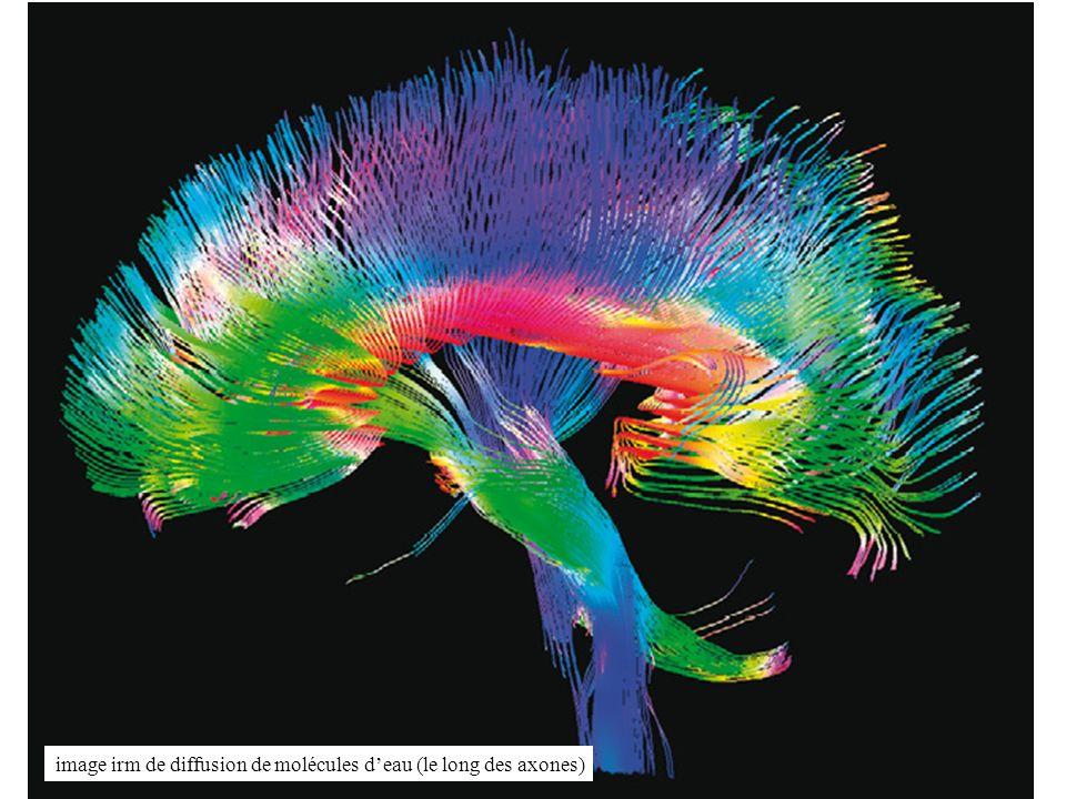 61 image irm de diffusion de molécules deau (le long des axones)