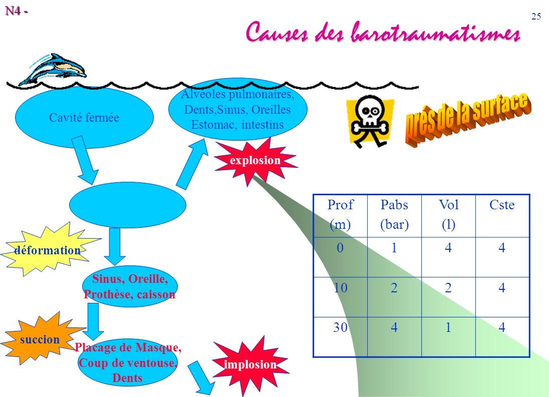 N4 - 25 Causes des barotraumatismes Cavité fermée Sinus, Oreille, Prothèse, caisson Prof (m) Pabs (bar) Vol (l) Cste 0144 10224 30414 implosion Placag