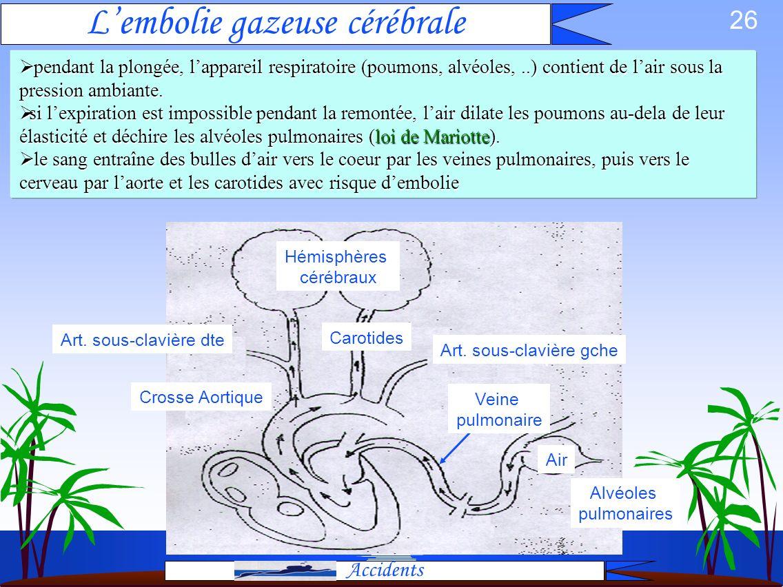25 Surpression Pulmonaire: Anatomie SANG Pneumothorax Emphysème sous cutané Œdème Aigu Pulmonaire Embolie gazeuse neurologique Emphysème médiastinal S