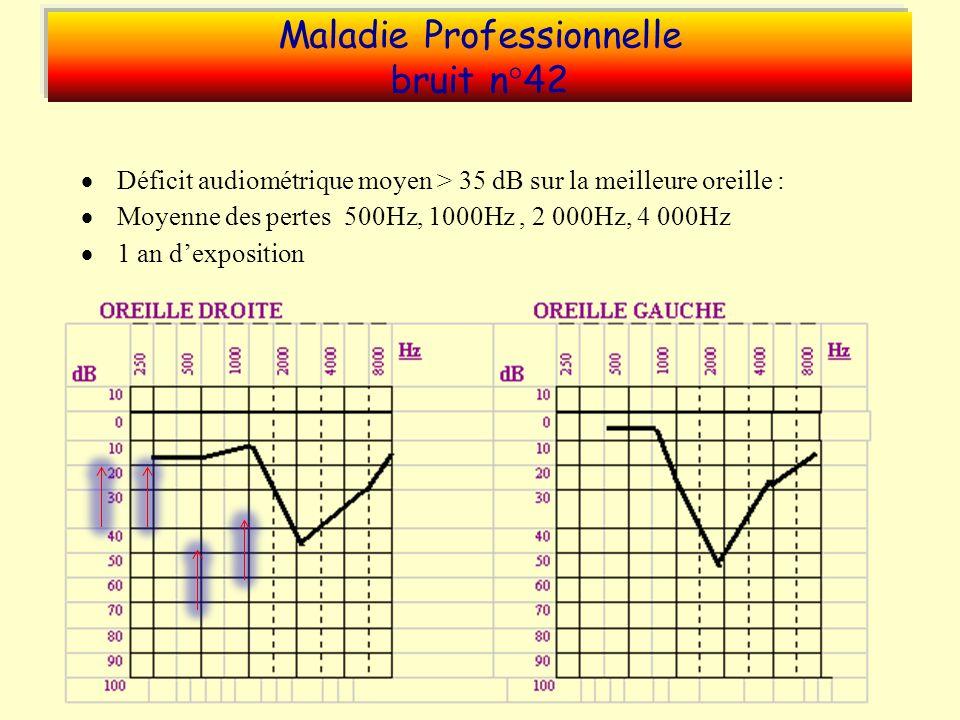 Maladie Professionnelle bruit n°42 Déficit audiométrique moyen > 35 dB sur la meilleure oreille : Moyenne des pertes 500Hz, 1000Hz, 2 000Hz, 4 000Hz 1