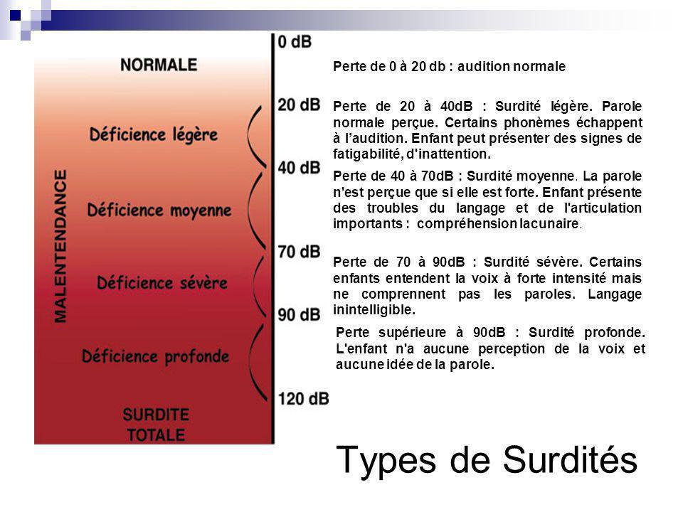 Types de Surdités Perte de 0 à 20 db : audition normale Perte de 20 à 40dB : Surdité légère. Parole normale perçue. Certains phonèmes échappent à laud